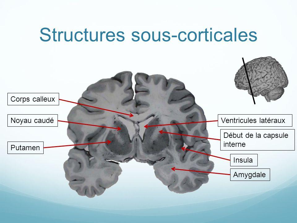 Structures sous-corticales PutamenCorps calleuxVentricules latéraux Insula Noyau caudéAmygdaleDébut de la capsule interne