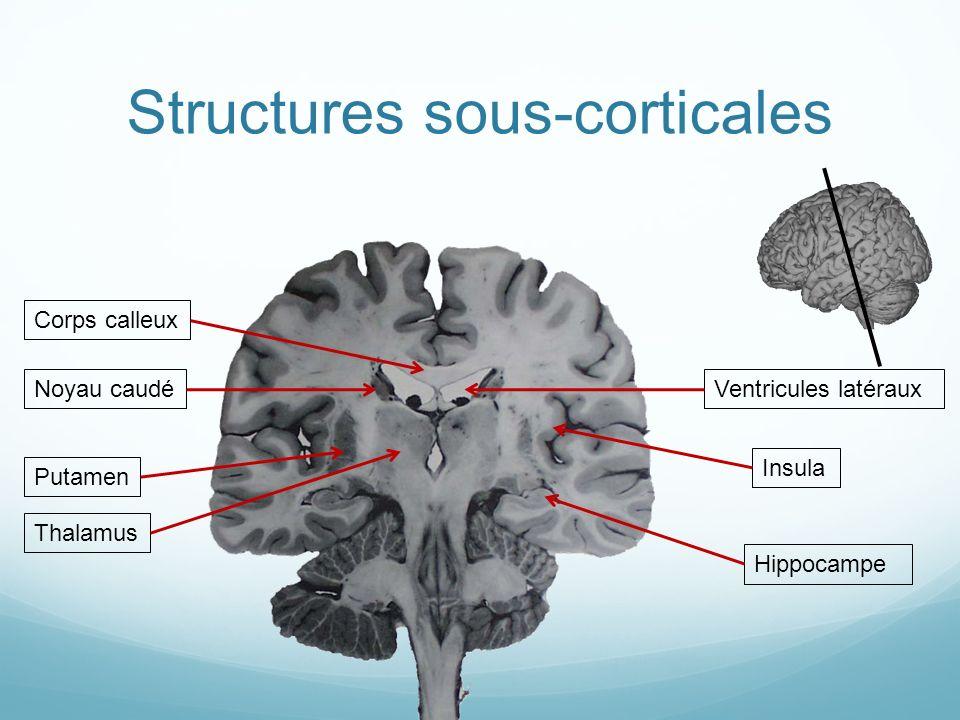 Structures sous-corticales Putamen Corps calleuxVentricules latéraux Insula Noyau caudé Hippocampe Thalamus