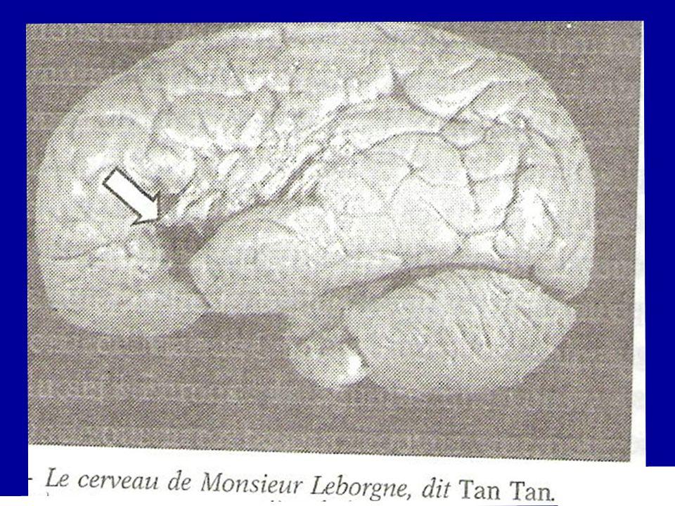 1871 - Julius Bernstein (électrophysiologiste allemand) montre que ce qui est propagé dans le système nerveux est une charge électrique négative 1874 - Wernicke (neurologue allemand) observe quune lésion dans la zone supérieure du lobe temporal de lhémisphère gauche est associée à des difficultés dans la compréhension du langage