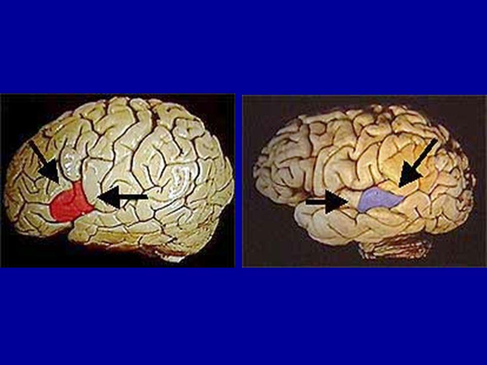 1875 - Richard Caton (médecin britannique) démontre pour la première fois, sur des animaux, lexistence dune activité électrique dans le cerveau liée à lactivité mentale 1879 - Sir Mac Ewen, chirurgien, opère avec succès une tumeur cérébrale dont il avait établi lui-même la localisation : cest le début de la neurochirurgie