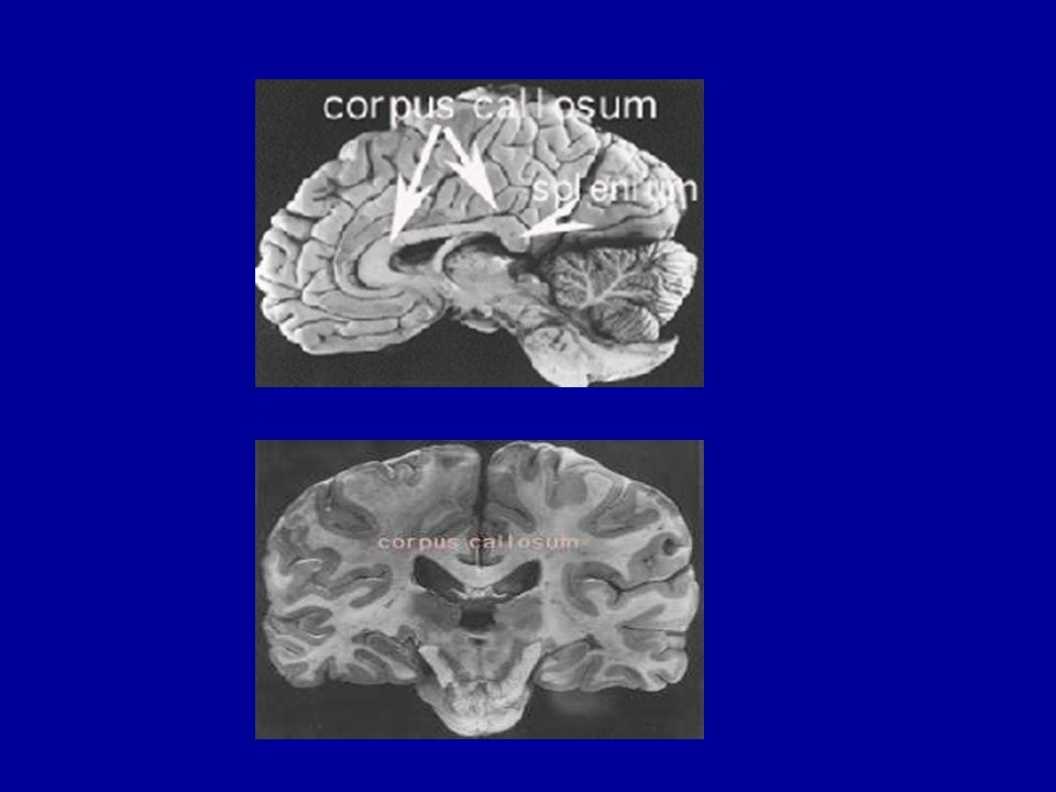 1961 - David Ingvar et ses collègues ont pu utiliser un gaz radioactif, le Xénon 133, chez lhomme, de manière inoffensive, et recueillir une image de lactivation moyenne du cerveau pendant quelques minutes