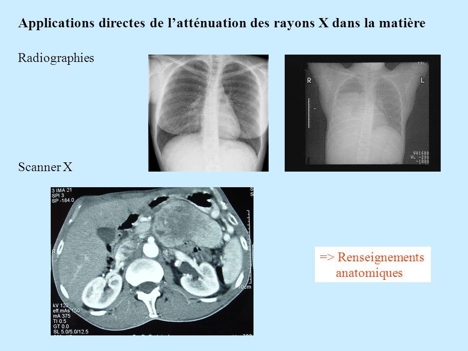 Applications directes de latténuation des rayons X dans la matière Radiographies Scanner X => Renseignements anatomiques