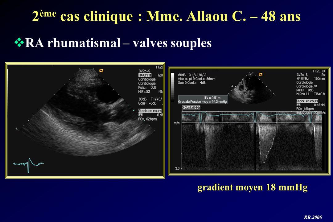RR.2006 2 ème cas clinique : Mme. Allaou C. – 48 ans RA rhumatismal – valves souples gradient moyen 18 mmHg