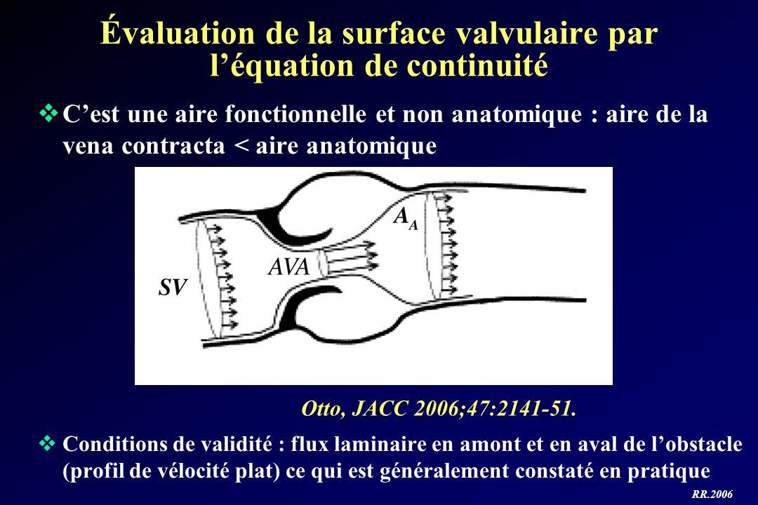 RR.2006 Évaluation de la surface valvulaire par léquation de continuité Cest une aire fonctionnelle et non anatomique : aire de la vena contracta < ai