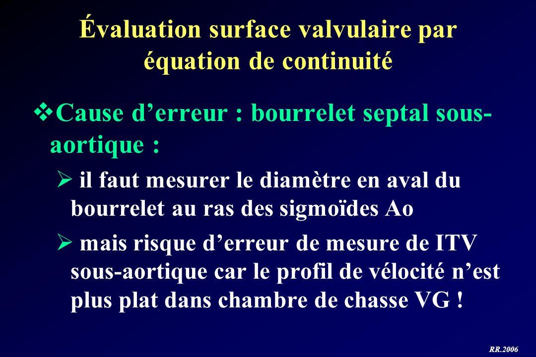RR.2006 Évaluation surface valvulaire par équation de continuité Cause derreur : bourrelet septal sous- aortique : il faut mesurer le diamètre en aval
