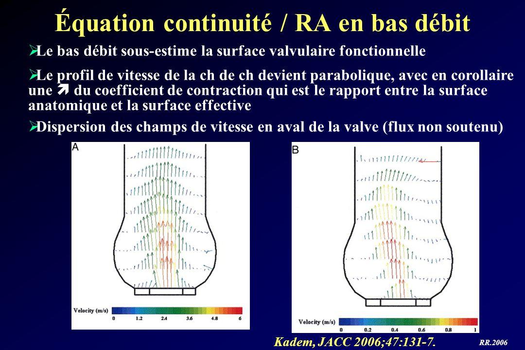 RR.2006 Équation continuité / RA en bas débit Kadem, JACC 2006;47:131-7. Le bas débit sous-estime la surface valvulaire fonctionnelle Le profil de vit