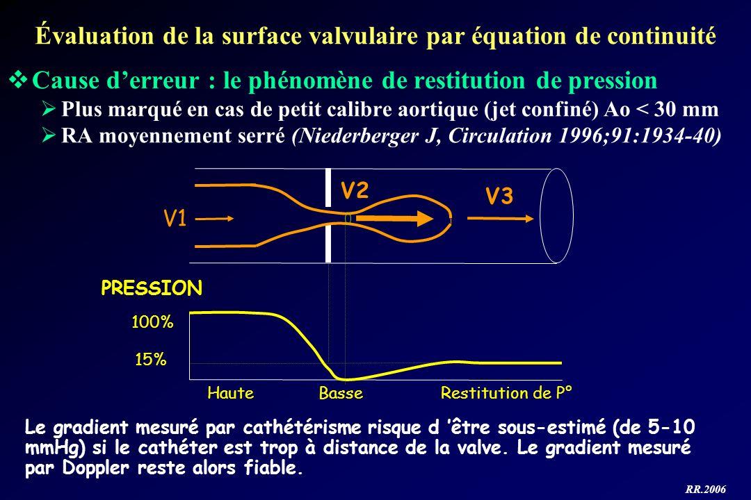 RR.2006 Évaluation de la surface valvulaire par équation de continuité V1 V2 V3 PRESSION 100% 15% Restitution de P°BasseHaute Le gradient mesuré par c