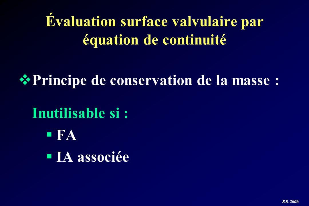 RR.2006 Principe de conservation de la masse : Inutilisable si : FA IA associée Évaluation surface valvulaire par équation de continuité