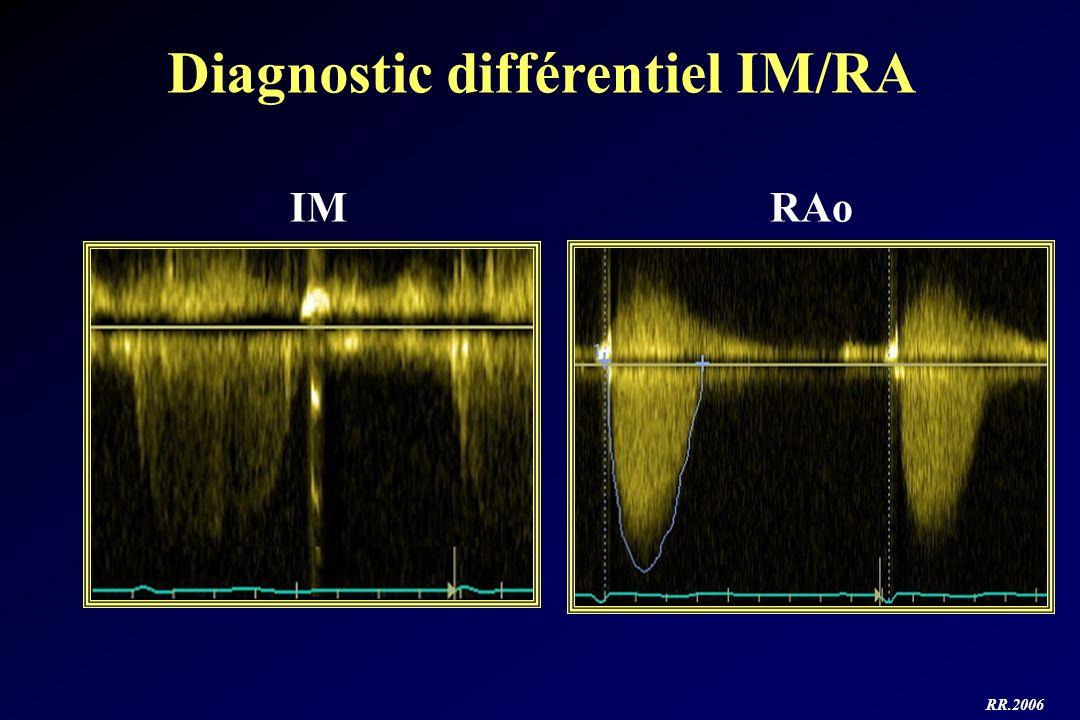 RR.2006 Diagnostic différentiel IM/RA IMRAo