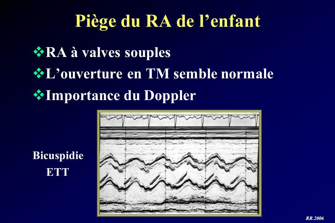RR.2006 Piège du RA de lenfant RA à valves souples Louverture en TM semble normale Importance du Doppler Bicuspidie ETT