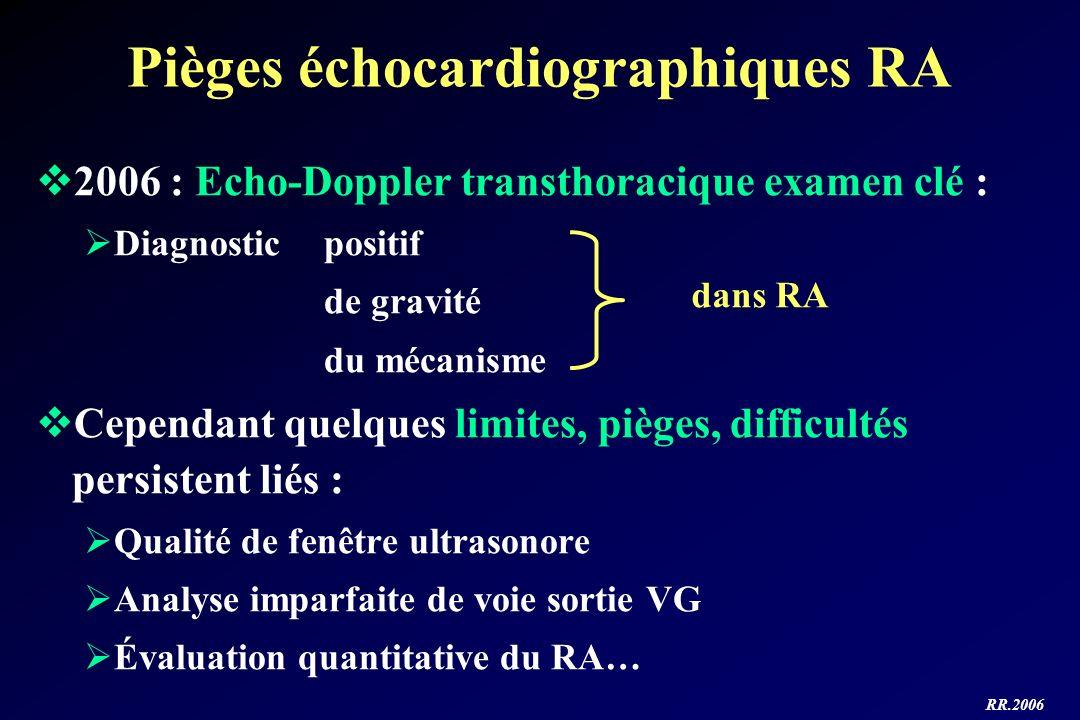 RR.2006 Pièges échocardiographiques RA 2006 : Echo-Doppler transthoracique examen clé : Diagnostic positif de gravité du mécanisme Cependant quelques