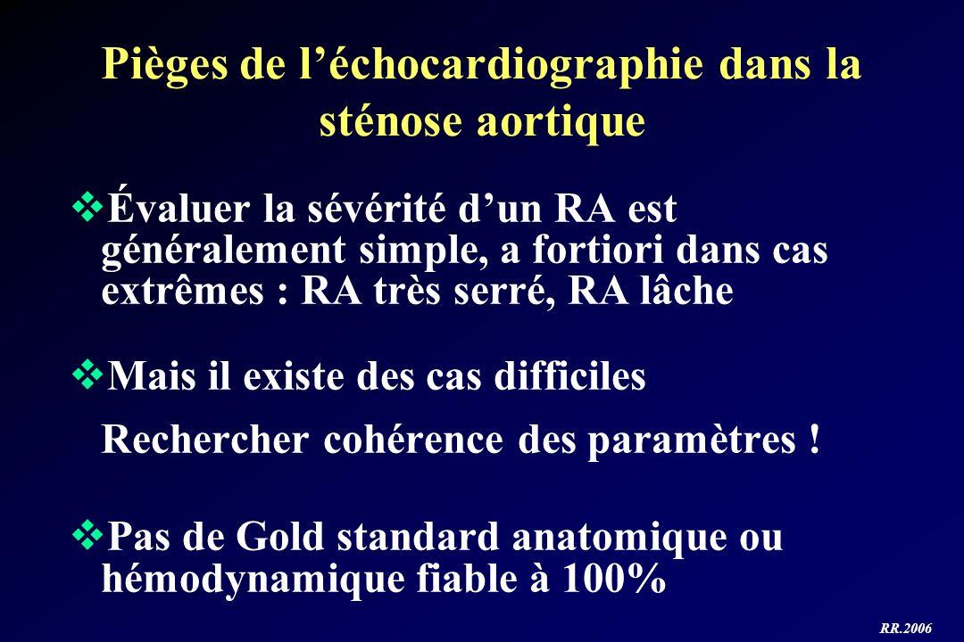 RR.2006 Pièges de léchocardiographie dans la sténose aortique Évaluer la sévérité dun RA est généralement simple, a fortiori dans cas extrêmes : RA tr