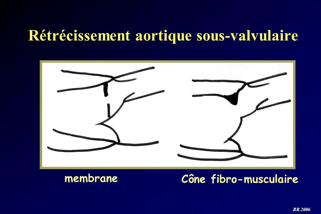 Rétrécissement aortique sous-valvulaire membrane Cône fibro-musculaire