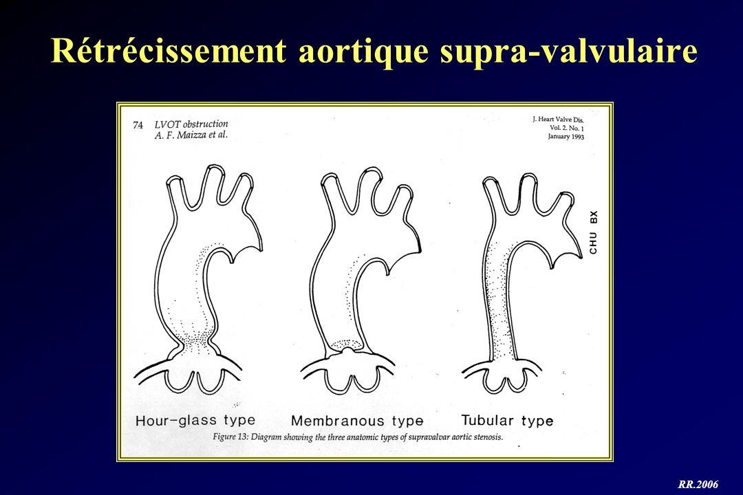 RR.2006 Rétrécissement aortique supra-valvulaire