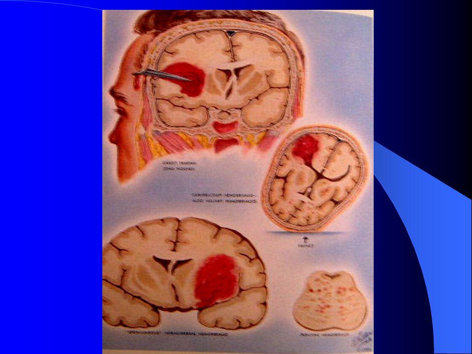Le gyrus cingulaire situé à la face interne des hémisphères participe aux comportements moteurs sous langle des émotions et de la motivation.