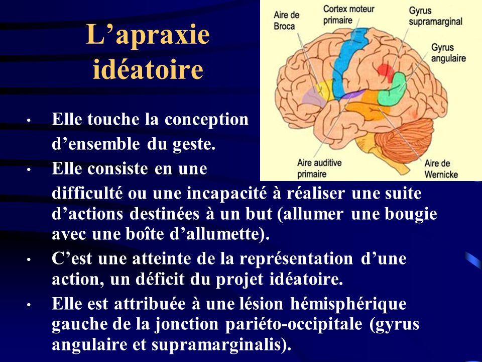 Lapraxie idéatoire Elle touche la conception densemble du geste. Elle consiste en une difficulté ou une incapacité à réaliser une suite dactions desti