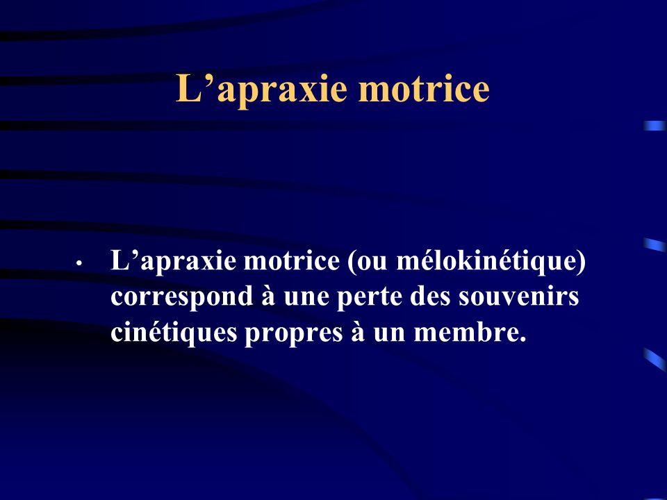 Lapraxie motrice Lapraxie motrice (ou mélokinétique) correspond à une perte des souvenirs cinétiques propres à un membre.