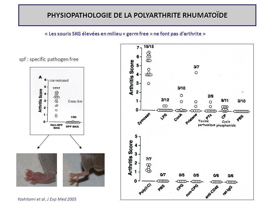 PHYSIOPATHOLOGIE DE LA POLYARTHRITE RHUMATOÏDE Yoshitomi et al. J Exp Med 2005 spf : specific pathogen free « Les souris SKG élevées en milieu « germ