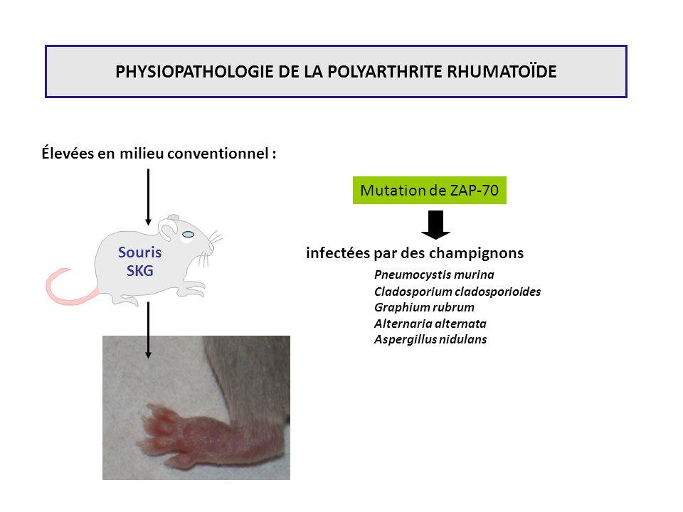 Souris SKG infectées par des champignons Pneumocystis murina Cladosporium cladosporioides Graphium rubrum Alternaria alternata Aspergillus nidulans Mu