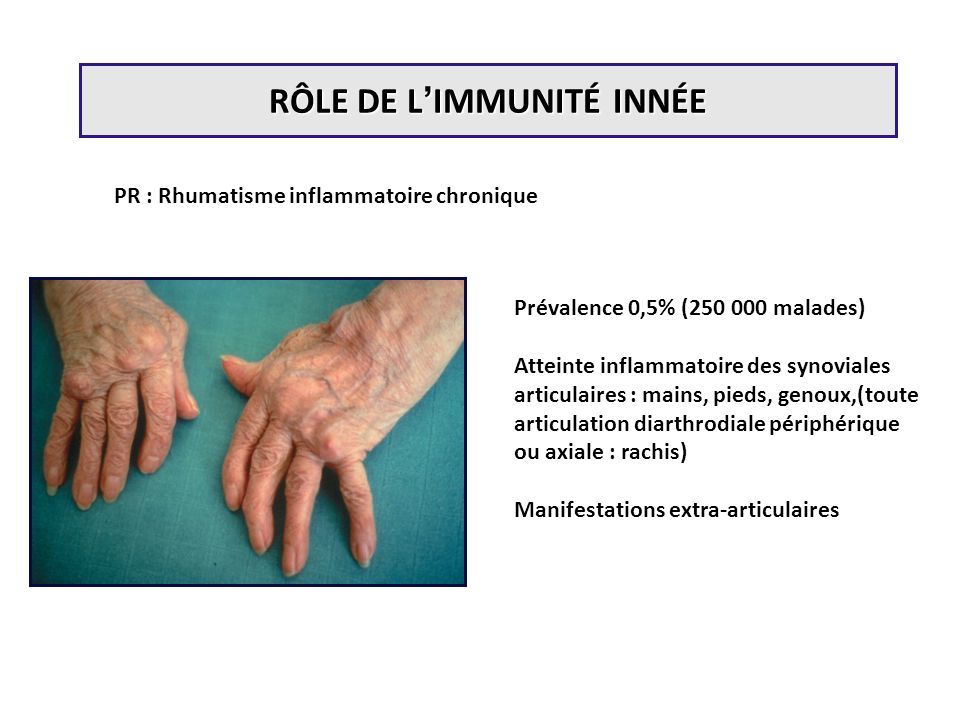 PR : Rhumatisme inflammatoire chronique Prévalence 0,5% (250 000 malades) Atteinte inflammatoire des synoviales articulaires : mains, pieds, genoux,(t