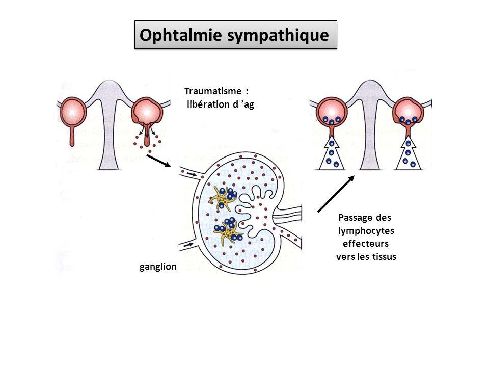 Traumatisme : libération d ag Passage des lymphocytes effecteurs vers les tissus ganglion Ophtalmie sympathique