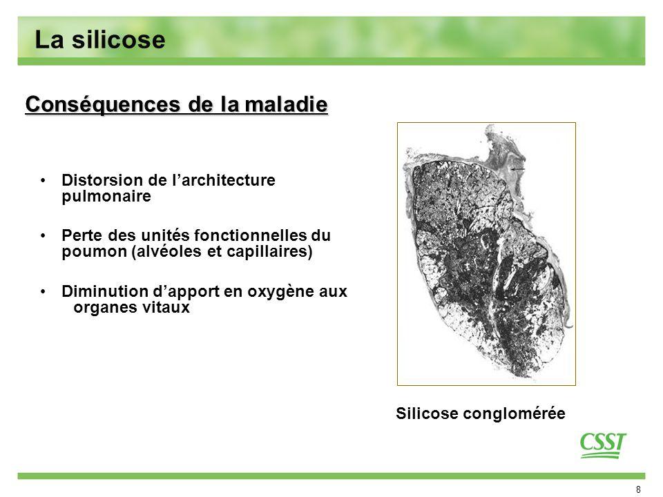 8 La silicose Distorsion de larchitecture pulmonaire Perte des unités fonctionnelles du poumon (alvéoles et capillaires) Diminution dapport en oxygène