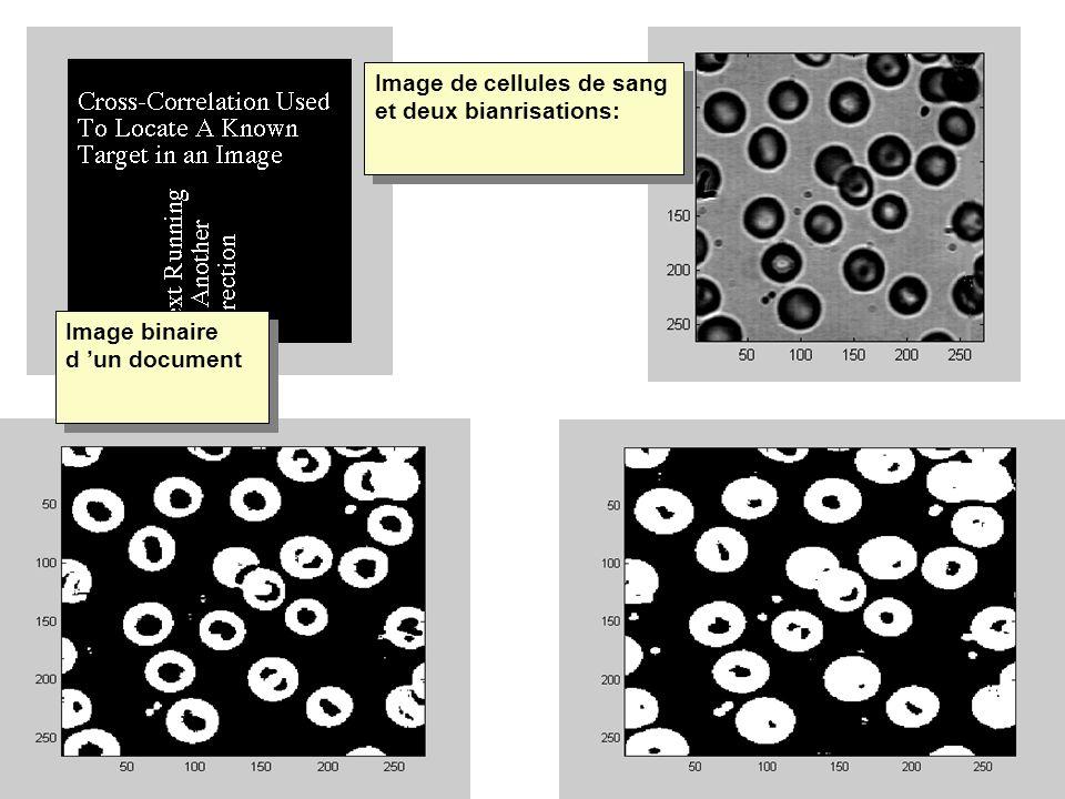 Image binaire d un document Image de cellules de sang et deux bianrisations: