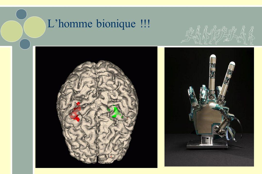 Lhomme bionique !!!
