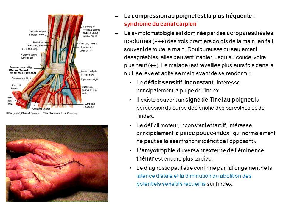 –La compression au poignet est la plus fréquente : syndrome du canal carpien –La symptomatologie est dominée par des acroparesthésies nocturnes (+++) des trois premiers doigts de la main, en fait souvent de toute la main.