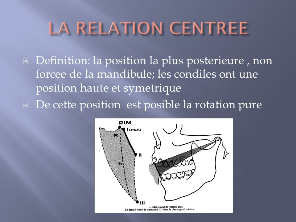 Au moment de ce premier contact IM est complete = contact en relation centree ( OIM=RC ; point-in centric) Plus souvent PRC se situe en arriere de OIM (long-centric)