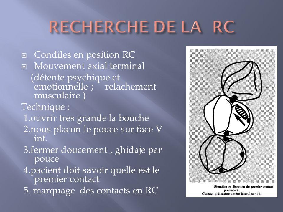 Condiles en position RC Mouvement axial terminal (détente psychique et emotionnelle ; relachement musculaire ) Technique : 1.ouvrir tres grande la bouche 2.nous placon le pouce sur face V inf.