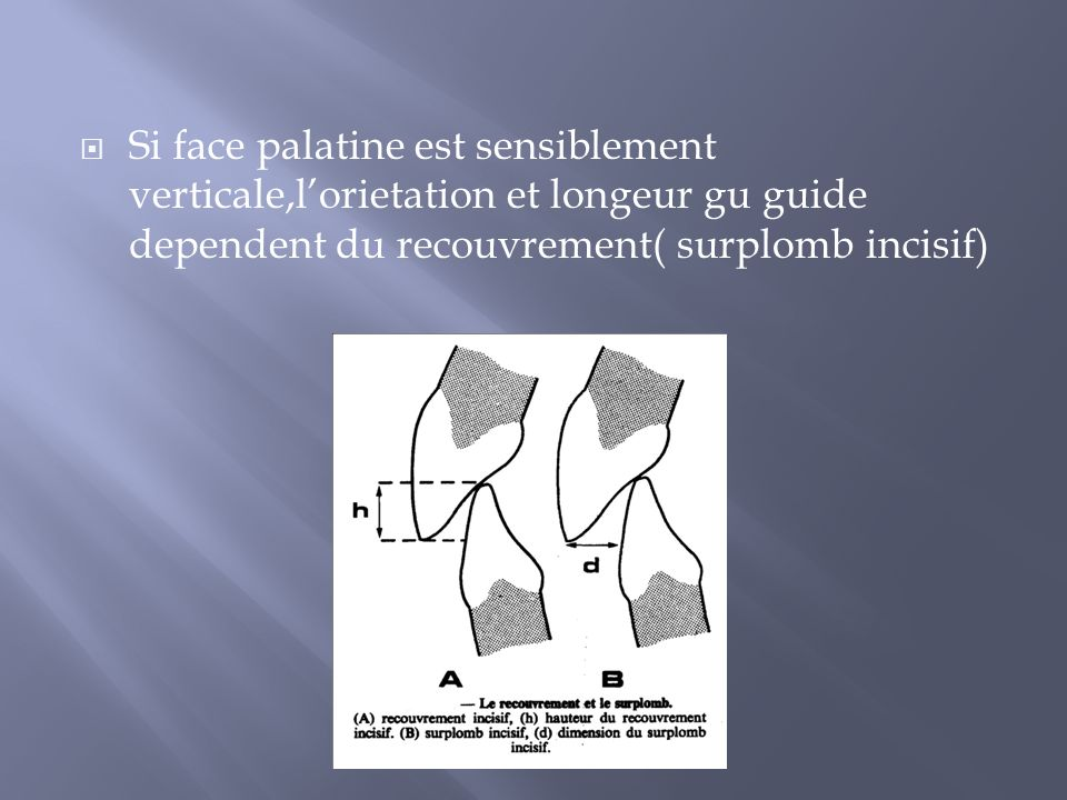 Se situe au niveau des incisives qui sont chargees de guider la propulsion Le dent devien ansi un obstacle qui peut determiner une deviation Subit un traumatisme occlusal, qui favorise a son tour des malpositions