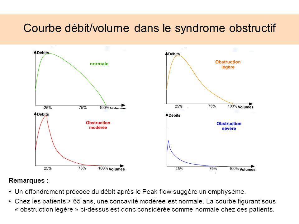 Courbe débit/volume dans le syndrome obstructif Remarques : Un effondrement précoce du débit après le Peak flow suggère un emphysème. Chez les patient