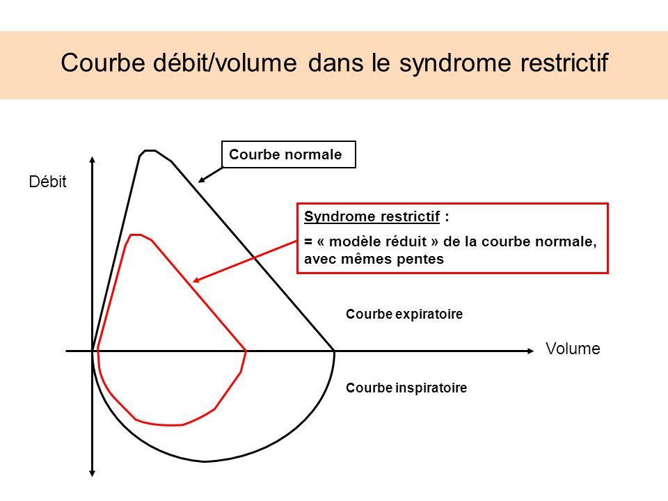 Courbe débit/volume dans le syndrome restrictif Courbe expiratoire Syndrome restrictif : = « modèle réduit » de la courbe normale, avec mêmes pentes C