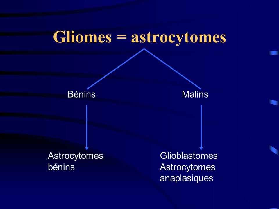Gliomes = astrocytomes Astrocytomes bénins Glioblastomes Astrocytomes anaplasiques BéninsMalins