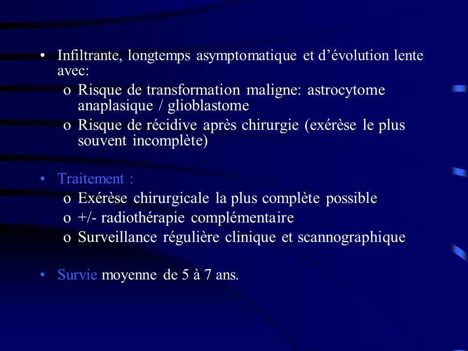 Infiltrante, longtemps asymptomatique et dévolution lente avec: oRisque de transformation maligne: astrocytome anaplasique / glioblastome oRisque de récidive après chirurgie (exérèse le plus souvent incomplète) Traitement : oExérèse chirurgicale la plus complète possible o+/- radiothérapie complémentaire oSurveillance régulière clinique et scannographique Survie moyenne de 5 à 7 ans.