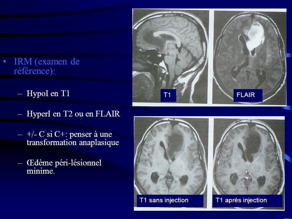 IRM (examen de référence): –HypoI en T1 –HyperI en T2 ou en FLAIR –+/- C si C+: penser à une transformation anaplasique –Œdème péri-lésionnel minime.