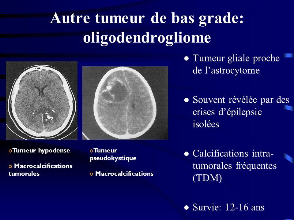 Autre tumeur de bas grade: oligodendrogliome Tumeur gliale proche de lastrocytome Souvent révélée par des crises dépilepsie isolées Calcifications intra- tumorales fréquentes (TDM) Survie: 12-16 ans oTumeur hypodense o Macrocalcifications tumorales oTumeur pseudokystique o Macrocalcifications