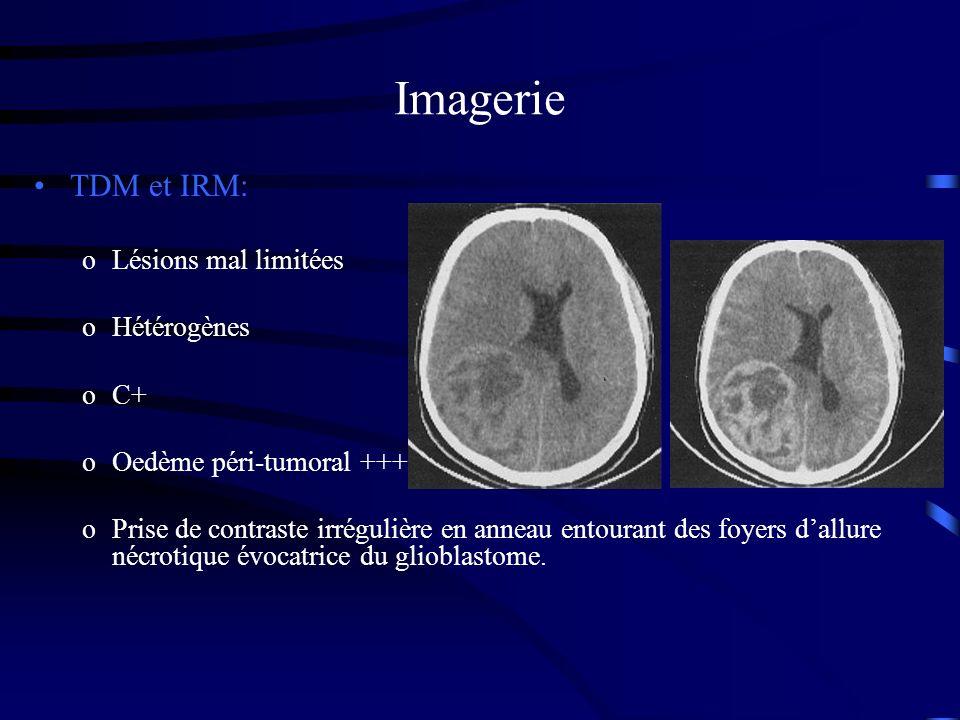 Imagerie TDM et IRM: oLésions mal limitées oHétérogènes oC+ oOedème péri-tumoral +++ oPrise de contraste irrégulière en anneau entourant des foyers dallure nécrotique évocatrice du glioblastome.