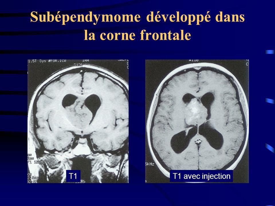 Subépendymome développé dans la corne frontale T1T1 avec injection