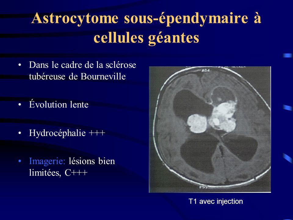 Astrocytome sous-épendymaire à cellules géantes Dans le cadre de la sclérose tubéreuse de Bourneville Évolution lente Hydrocéphalie +++ Imagerie: lésions bien limitées, C+++ T1 avec injection