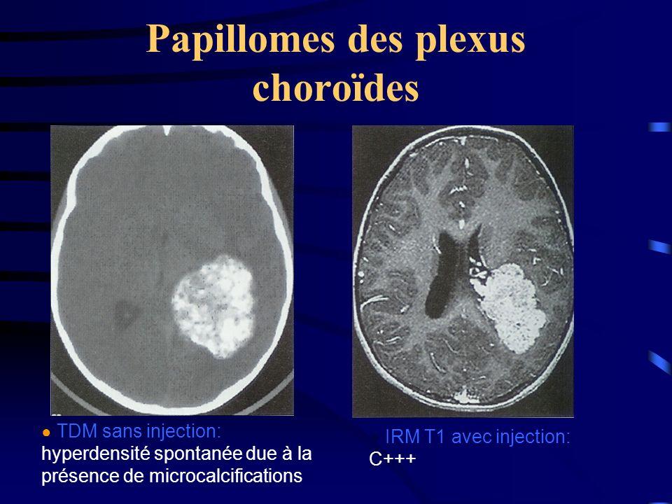 Papillomes des plexus choroïdes TDM sans injection: hyperdensité spontanée due à la présence de microcalcifications IRM T1 avec injection: C+++