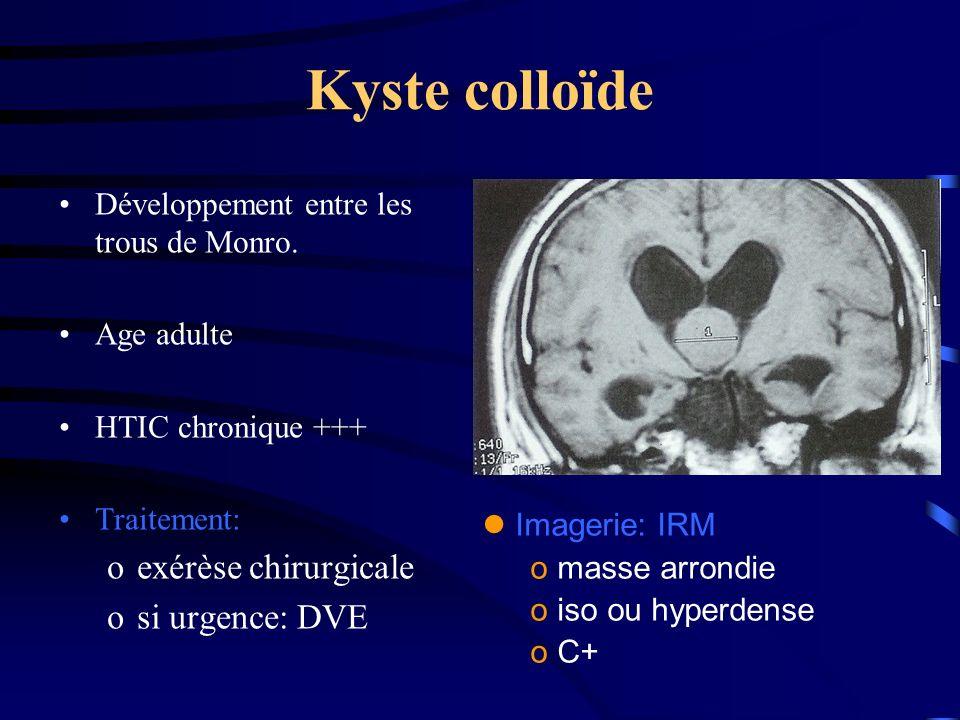 Kyste colloïde Développement entre les trous de Monro.