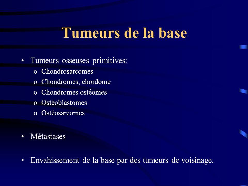 Tumeurs de la base Tumeurs osseuses primitives: oChondrosarcomes oChondromes, chordome oChondromes ostéomes oOstéoblastomes oOstéosarcomes Métastases Envahissement de la base par des tumeurs de voisinage.