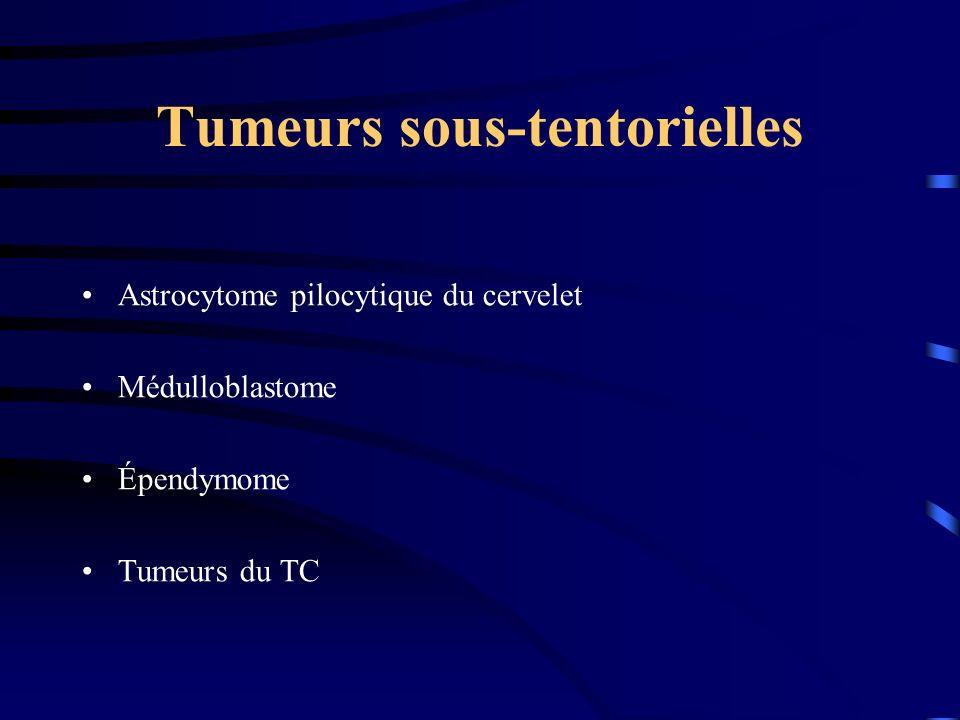 Tumeurs sous-tentorielles Astrocytome pilocytique du cervelet Médulloblastome Épendymome Tumeurs du TC