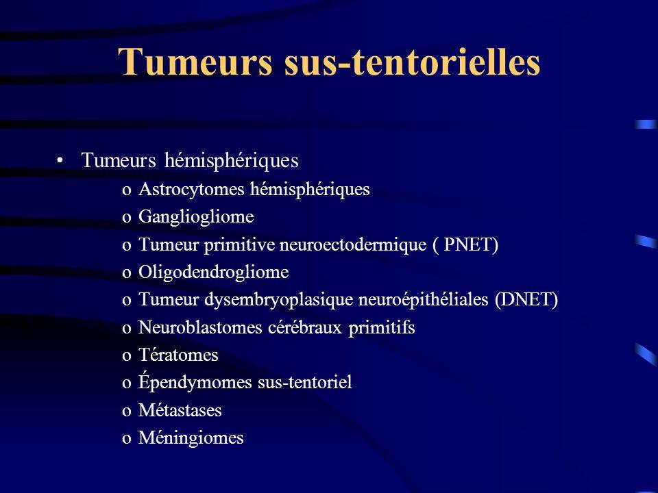 Tumeurs sus-tentorielles Tumeurs hémisphériques oAstrocytomes hémisphériques oGangliogliome oTumeur primitive neuroectodermique ( PNET) oOligodendrogliome oTumeur dysembryoplasique neuroépithéliales (DNET) oNeuroblastomes cérébraux primitifs oTératomes oÉpendymomes sus-tentoriel oMétastases oMéningiomes