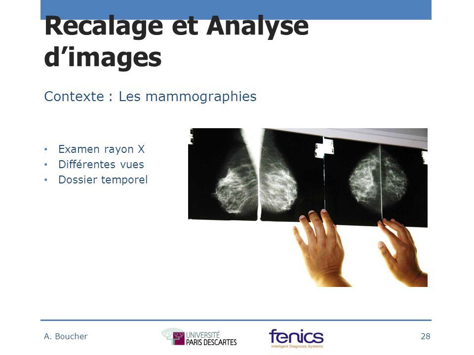 Contexte : Les mammographies Examen rayon X Différentes vues Dossier temporel Recalage et Analyse dimages A.