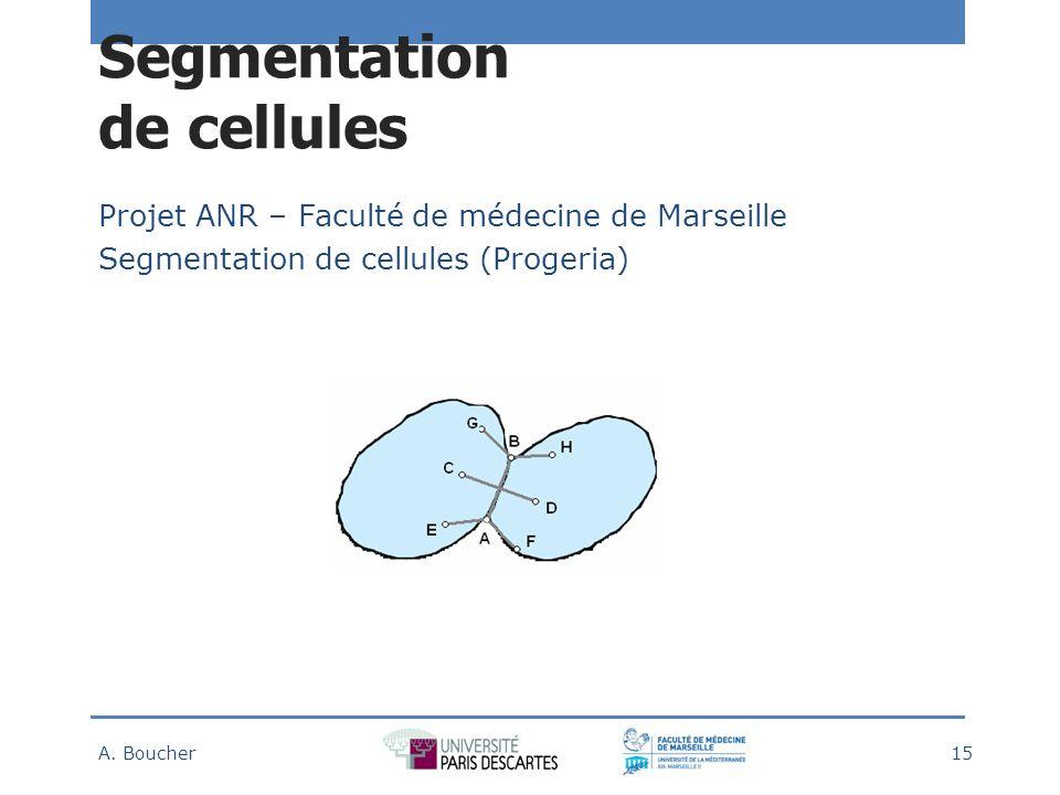 Segmentation de cellules Projet ANR – Faculté de médecine de Marseille Segmentation de cellules (Progeria) A.