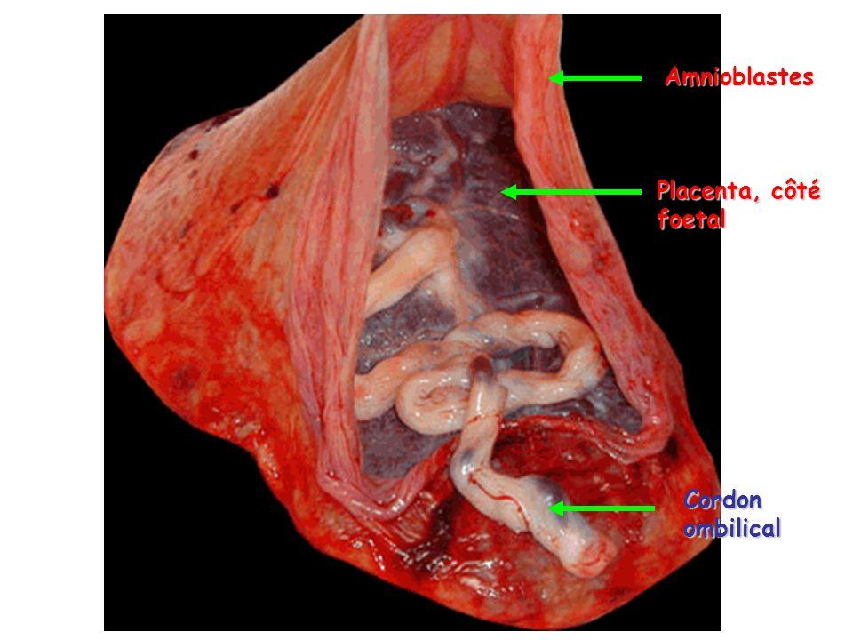 placenta = glande endocrine Synthétise H.stéroïdiques H.