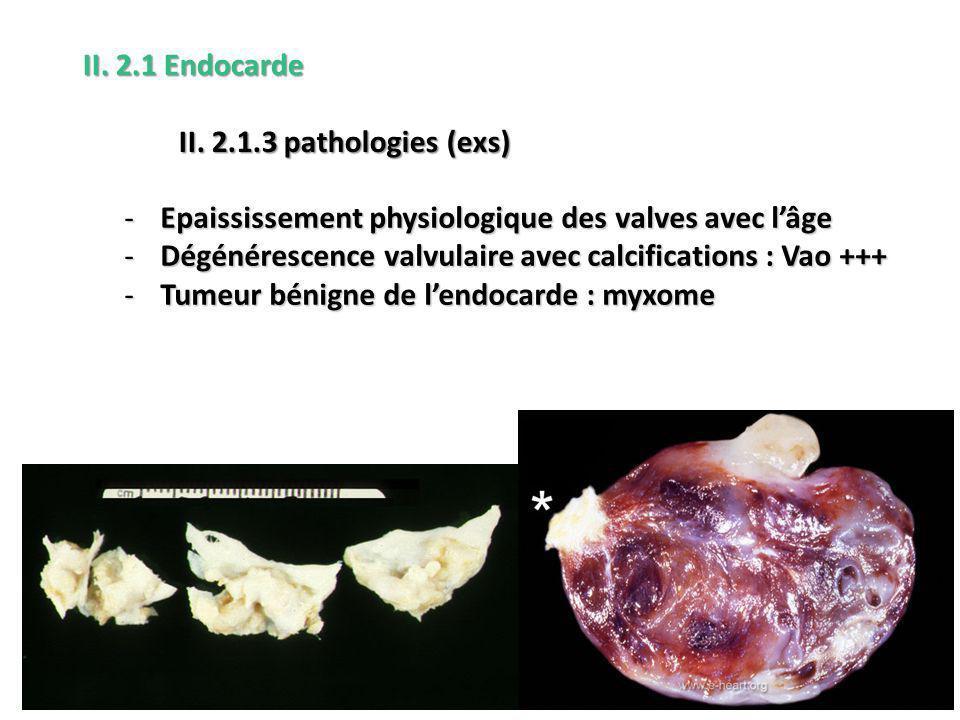 -Epaississement physiologique des valves avec lâge -Dégénérescence valvulaire avec calcifications : Vao +++ -Tumeur bénigne de lendocarde : myxome II.